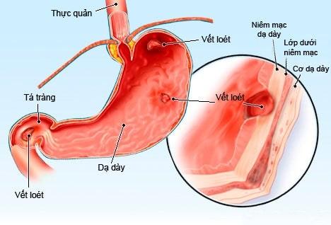 giải phẫu viêm loét dạ dày tá tràng